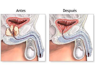 Efectos de la extirpación de la próstata