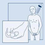 Autoexamen del Pene: Guía para Hombres