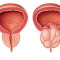 Tratamientos para agrandamiento de la próstata (BPH)