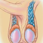 Varicoceles: Protuberancias testiculares e hinchazón